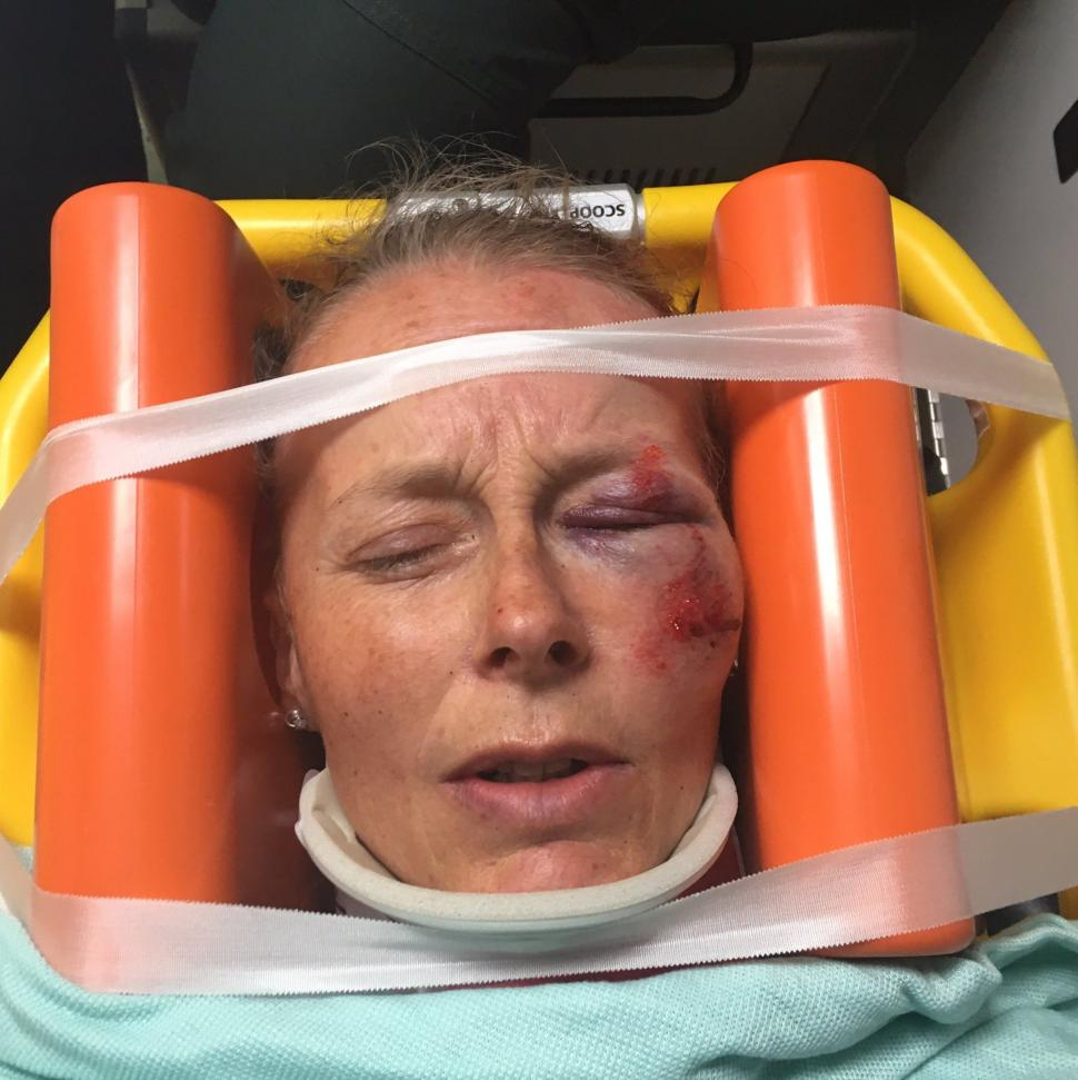 Black Friday Car Deals >> Mother of Olympic medallist Becky James breaks pelvis after she is hit by car while cycling ...