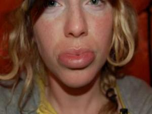 lindsey lip.jpg