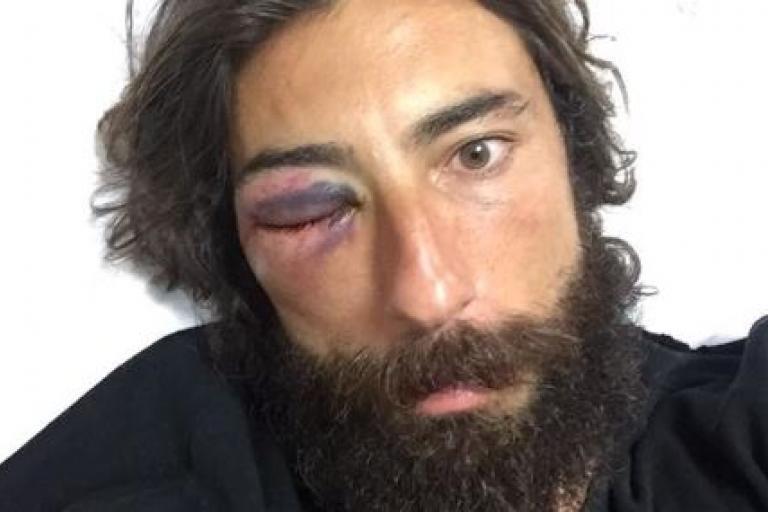 Vittorio Brumotti pre-eye operation (source Brumottistar on Twitter, cropped)