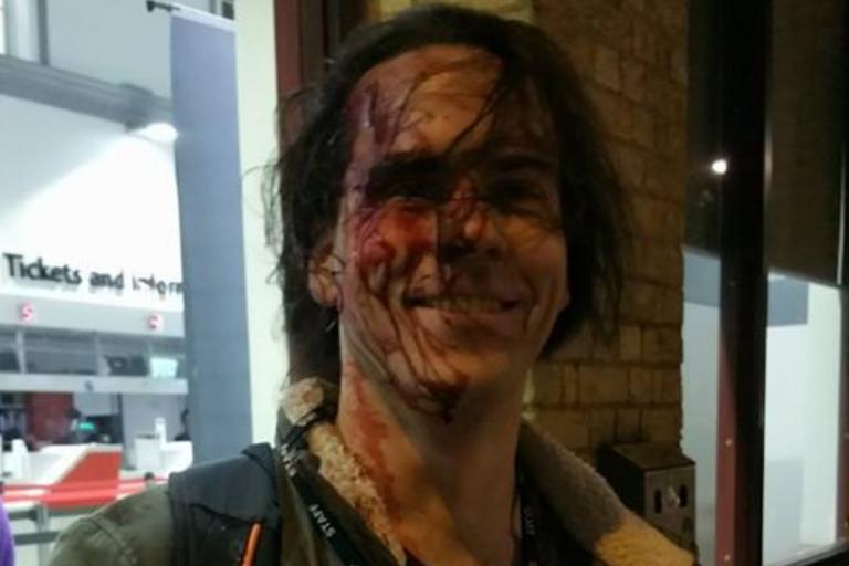 Johan Henriksson following assault (source - Facerbook).PNG
