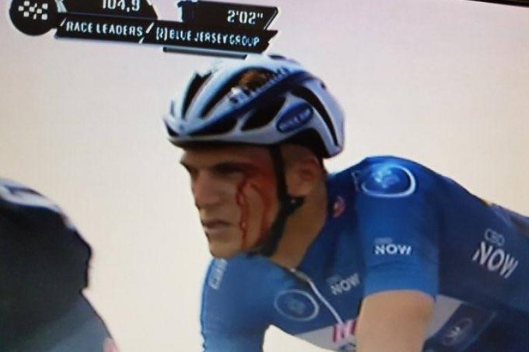 Marcel Kittel bloodied at Dubai Tour.jpg