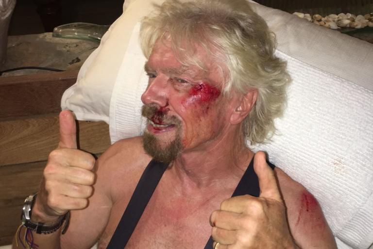 Sir Richard Branson after bike crash (image from Virgin.com).jpg